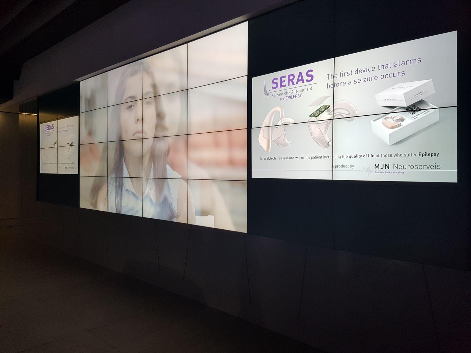 Un revolucionario dispositivo que alerta de las crisis epilépticas despierta gran interés en el sector médico