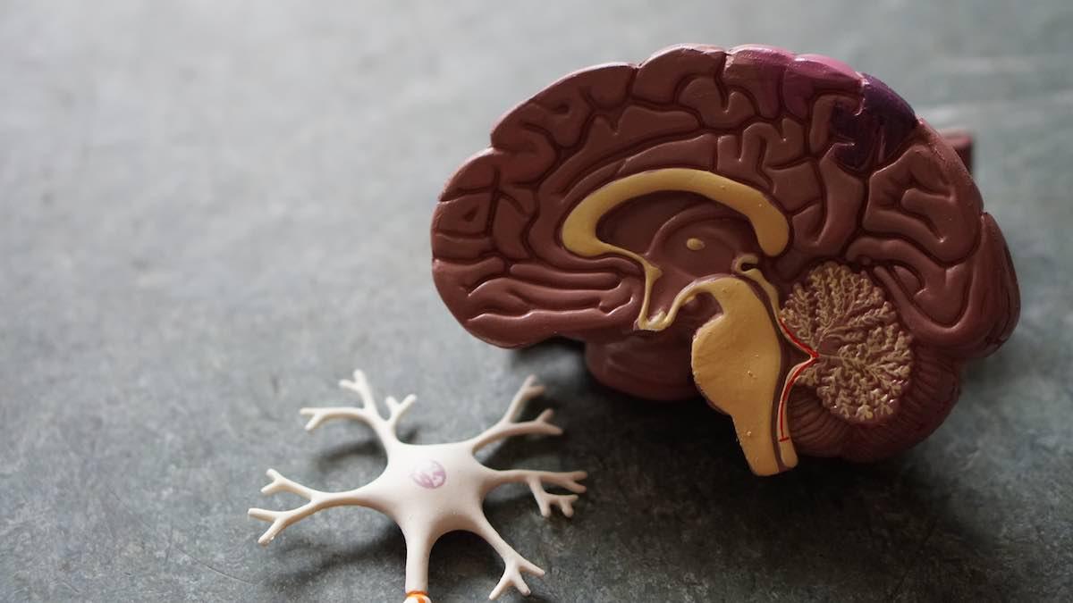 ¿Quién puede tener una crisis de epilepsia?